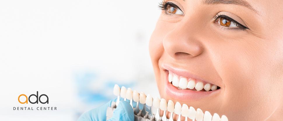 Albirea dinților – tehnici și recomandări