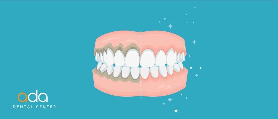 Importanta Digital Smile Design in parodontologie