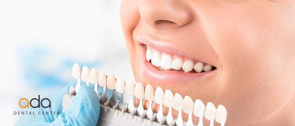 Culoarea in restaurarile dentare