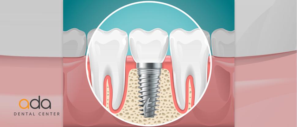 De ce implant? Fortele din masticatie dau raspunsul biologic.